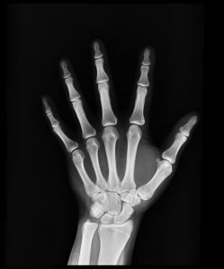 A photo of an x-ray of a hand.