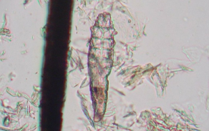 Photo of Demodex Mite