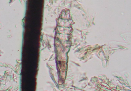 Photo of Demodex Mite